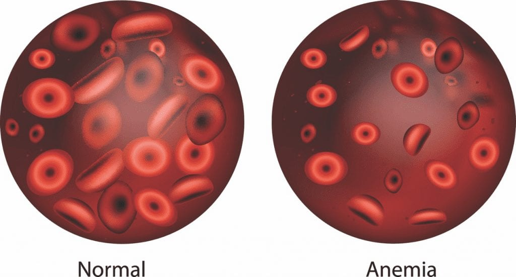 low blood levels of iron and anemia
